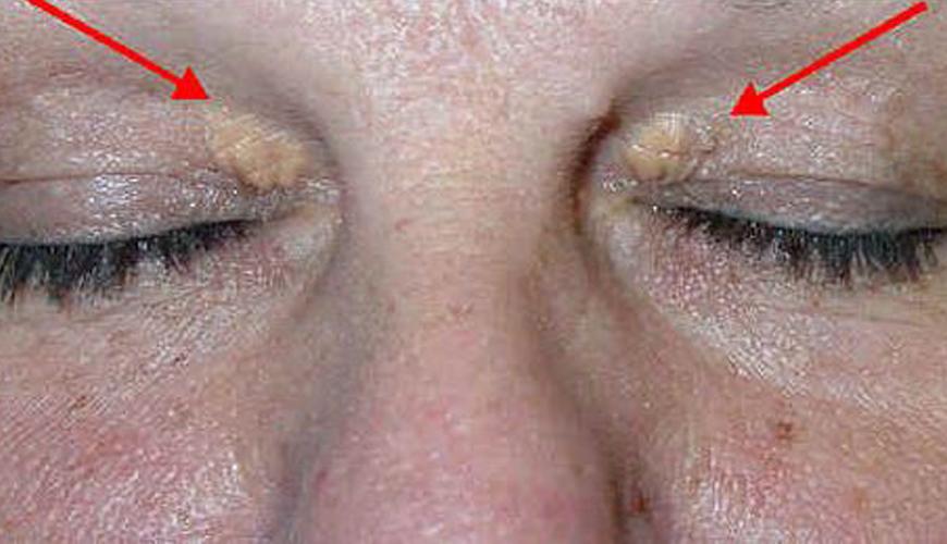 Τι αποκαλύπτουν για την υγεία σας αυτά τα σημάδια στα μάτια – ΔΕΛΒΙΖΗ ΕΥΗ –  Καρδιολόγος Θέρμη 7fde64043fc
